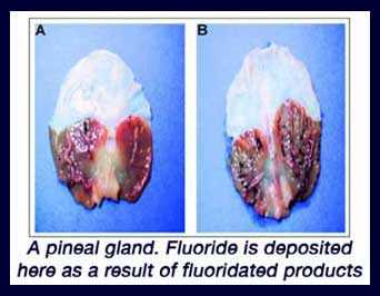 calcified_pineal_gland