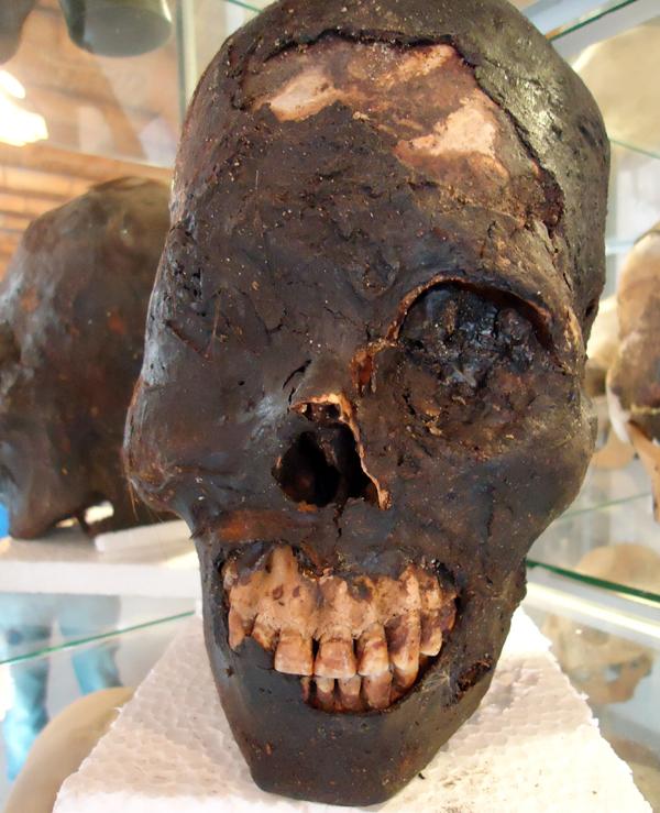 Alien Skulls of Paracas